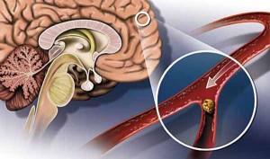 Образование тромбов нарушает мозговое кровообращение