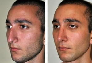 С помощью ринопластики выпрямляют нос
