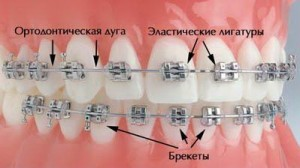 брекеты для исправления прикуса зубов