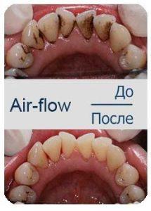 методом Air Flow