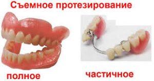 схемное протезирование