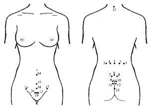 гирудотерапия гинекология