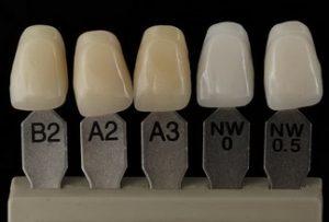 От чего зависит цвет зубов