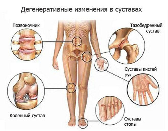 Из-за чего хрустят суставы после травмы наросты на коленных суставах вызывающие боль при сгибании ног