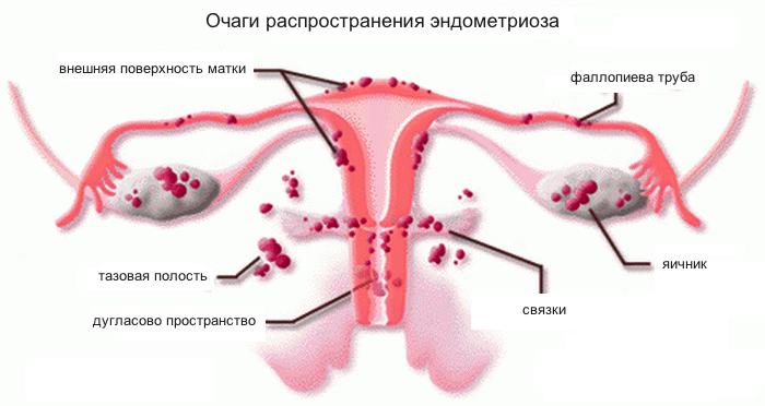 очаги распространеия эндометриоза
