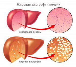 дистрофия печени