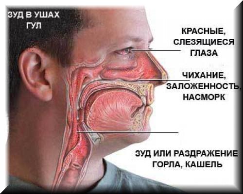 поллиноз аллергия на пыльцу лечение