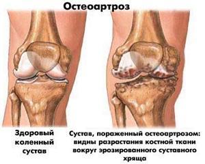 ОА коленного сустава
