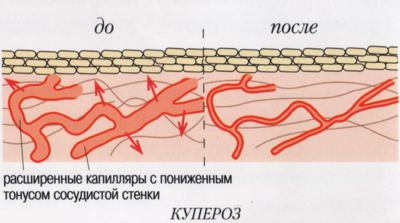 лечение купероза1