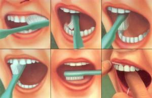 Схема чистки зубов