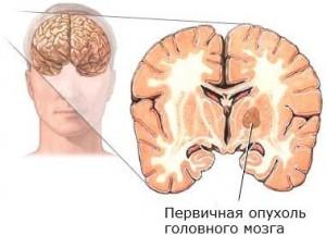 Опухоль мозга может вызывать перепад температуры тела