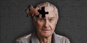 болезнь Альцгеймера 1
