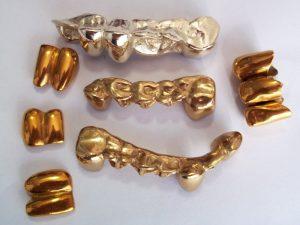 нитрид титан в стоматотологии